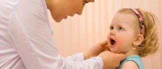 Как лечить аденоиды у ребенка без операции?